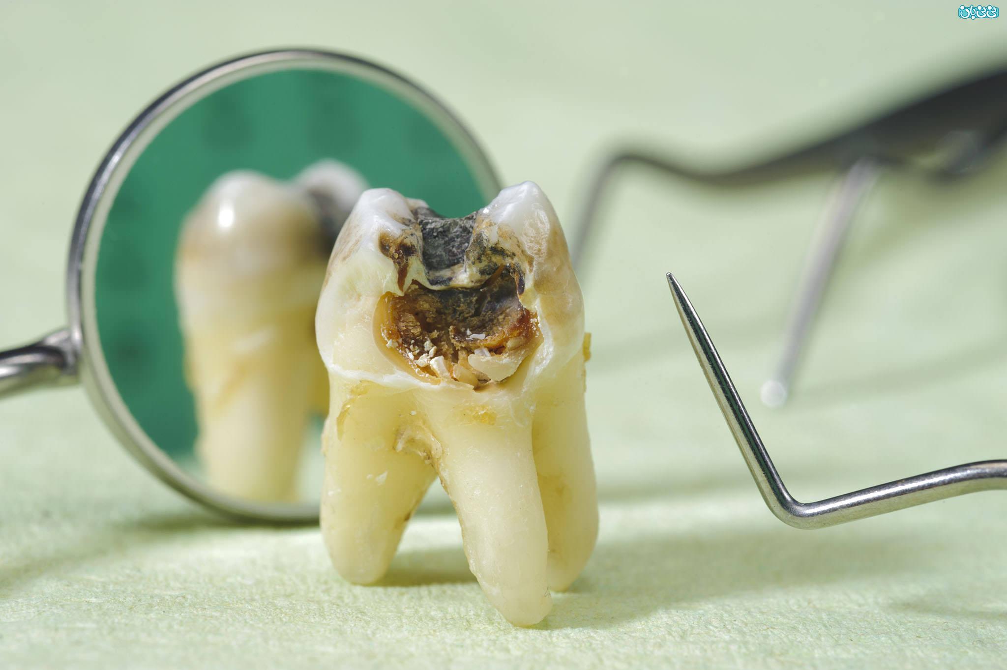 انواع پوسیدگی دندان - عکس پوسیدگی دندان -علت پوسیدگی دندان، بشناسید و پیشگیری کنید
