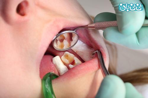 علل پوسیدگی دندان کودک علت پوسیدگی دندان، بشناسید و پیشگیری کنید