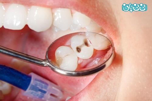 عکس پوسیدگی دندان علت پوسیدگی دندان، بشناسید و پیشگیری کنید