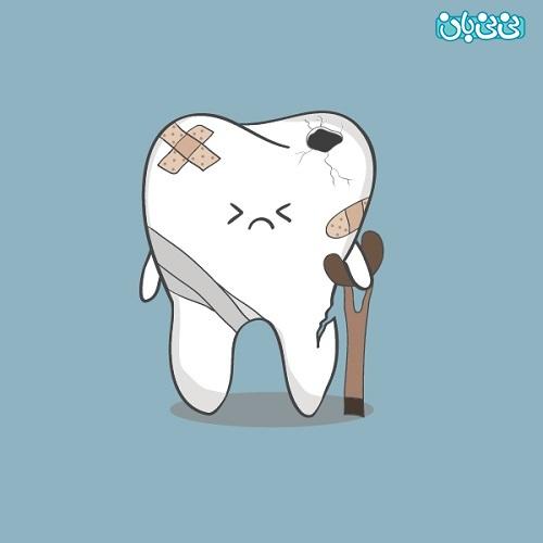 علت پوسیدگی دندان در سنین بالا - علت پوسیدگی دندان، بشناسید و پیشگیری کنید