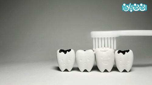 پیشگیری از پوسیدگی دندان بزرگسالان -علت پوسیدگی دندان، بشناسید و پیشگیری کنید