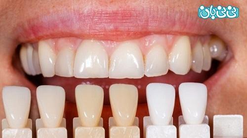 طول عمر لمینت کامپوزیتی - طول عمر لمینت دندان، از کامپوزیت بیشتره؟