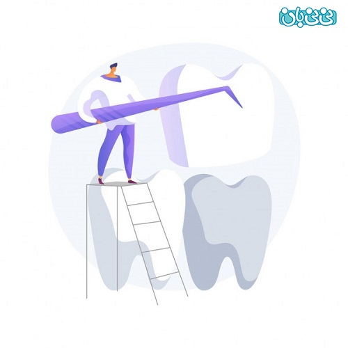 طول عمر کامپوزیت دندان - طول عمر لمینت دندان، از کامپوزیت بیشتره؟