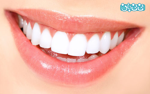 عمر لمینت دندان - طول عمر لمینت دندان، از کامپوزیت بیشتره؟