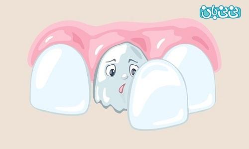 طول عمر لمینت سرامیکی - طول عمر لمینت دندان، از کامپوزیت بیشتره؟