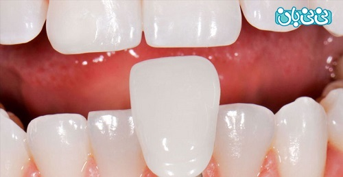لمینت دندان چقدر طول میکشد - طول عمر لمینت دندان، از کامپوزیت بیشتره؟