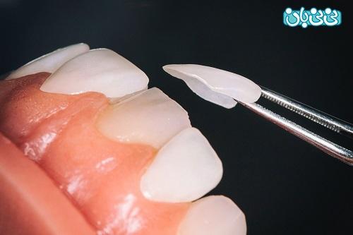 طول عمر لمینت دندان، از کامپوزیت بیشتره؟