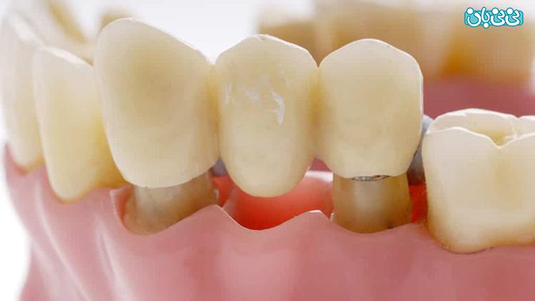 اقدامات قبل از روکش دندان