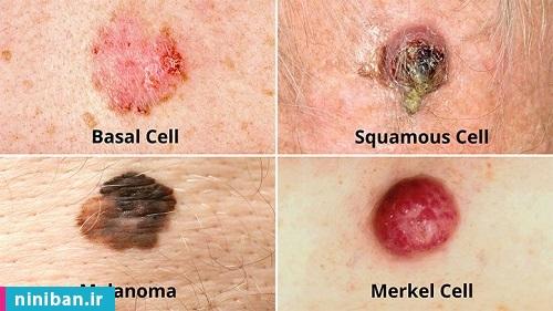آزمایش سرطان پوست