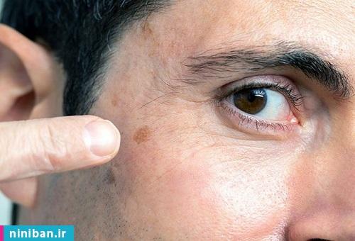 همه چیز درباره سرطان پوست، از پیشگیری تا درمان