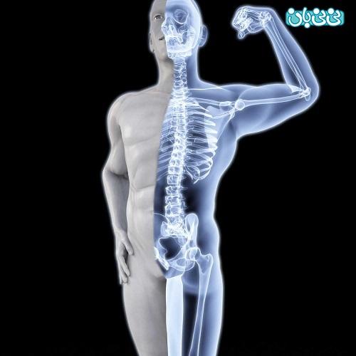 سنجش تراکم استخوان، تستی برای چهارستون بدن