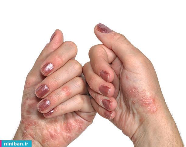 درمان اختلالات پوستی چگونه است؟