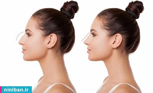 جراحی بینی استخوانی، بهترین دکتر تهران برای عمل بینی استخوانی کیست؟