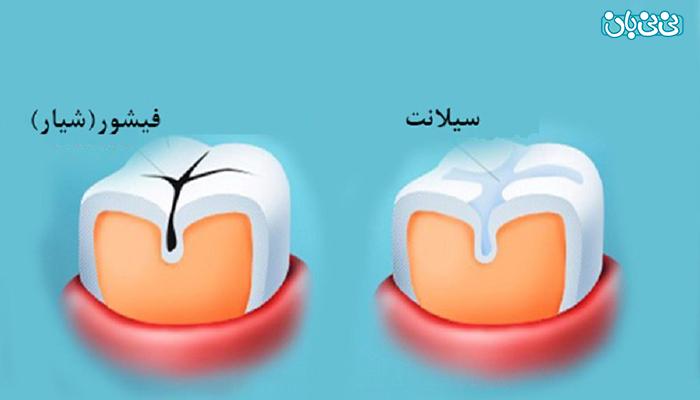 جلوگیری از پوسیدگی دندان کودکان، توسط فیشور سیلانت