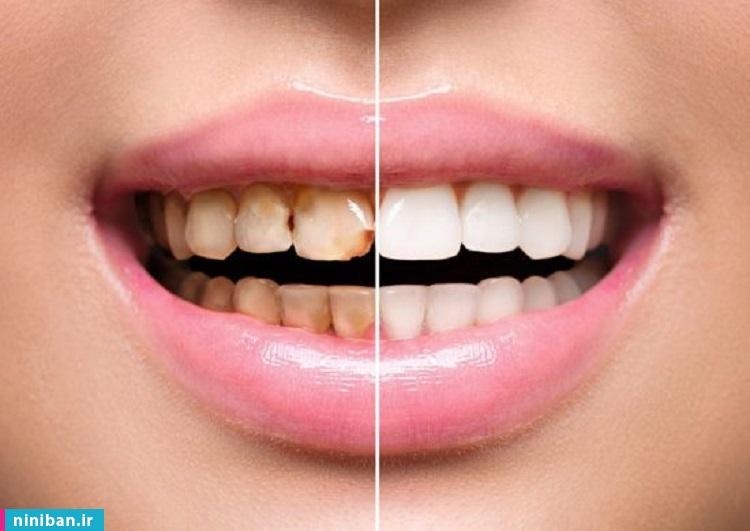معرفی بهترین دکتر کامپوزیت دندان در تهران