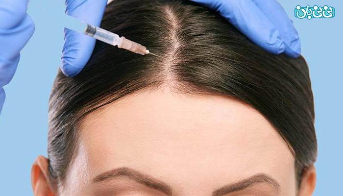 ریزش موی ناشی از کرونا